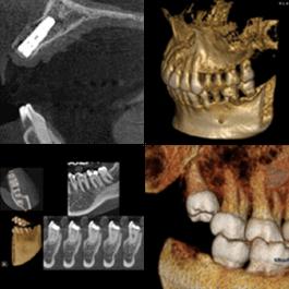3D画像で正確な診断