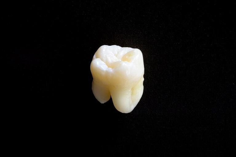 歯牙移植について
