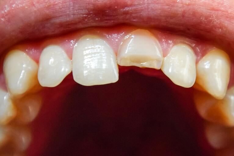 外傷(歯の破折)
