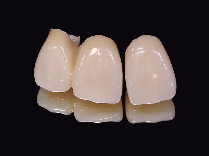 歯科技工士との連携で高精度な技工物をご提供します