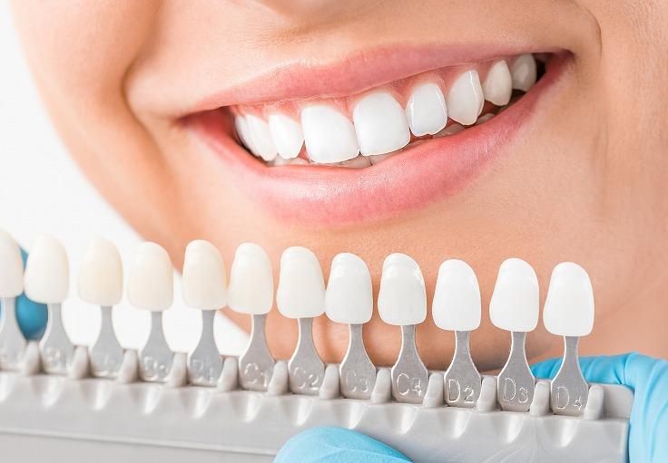 輝く白い歯を実現するホワイトニング