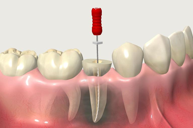 藤村歯科クリニックの根管治療