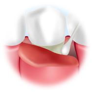 歯肉の剥離