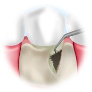 歯根表面の清掃