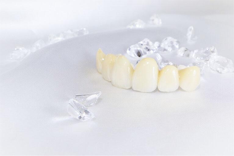 真の美しさ「機能美」を目指す審美歯科治療